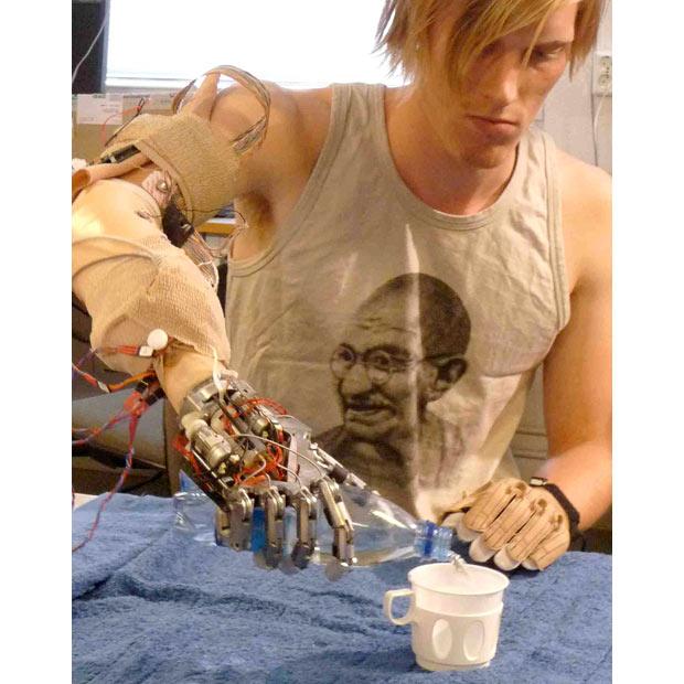 Bionic-hand_1515353i